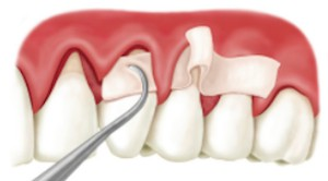 image showing tool and dental implants