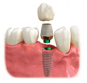 Dental Implants In Orlando