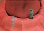 cgi of dental implant anchors