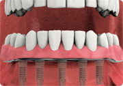 front teeth anchors with dental implants attached