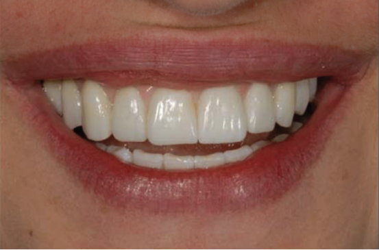 veneers in a real mouth