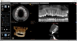 Dental Implant 3-d imaging