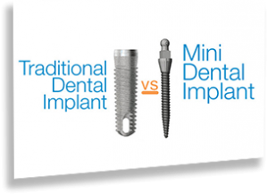 traditional vs mini dental implant image